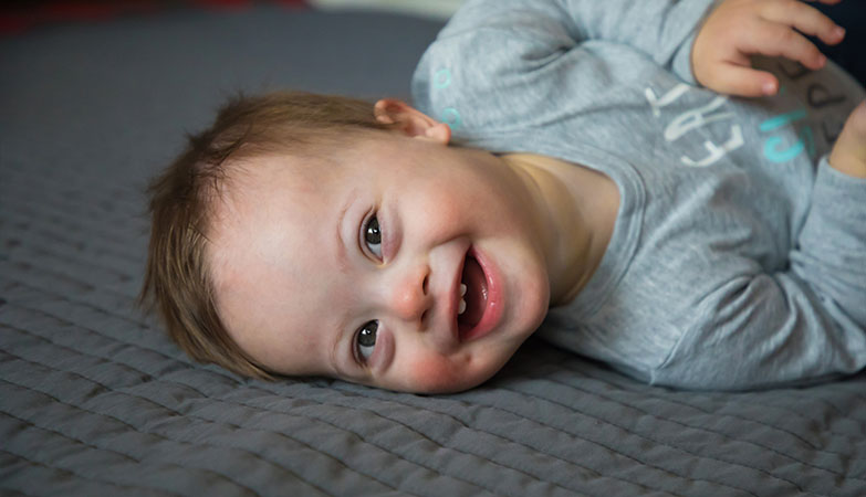 Toddler living with Down syndrome